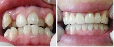 牙齿矫正后反弹, 谁之错?