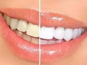 瓷贴面--美丽牙齿贴出来