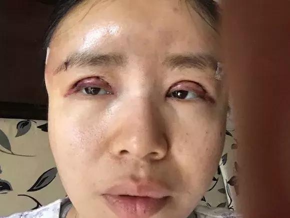 她往割了单眼皮, 却让本身的眼睛再也闭不上了! (整容到底值不值? )