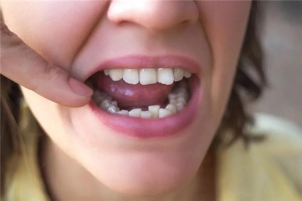 单排牙齿矫正可行吗?会不会更快捷更省钱?