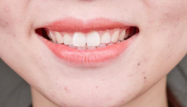 女性经常接吻,好事或不请自来,尤其前两个,大部分人都很满意