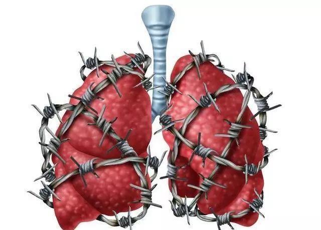 45岁女子,查出肺癌,除了吸烟,三件事,肺同样承受不起