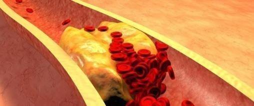 高血脂会制造血管垃圾!医生说:只有这样才能判断血脂高不高