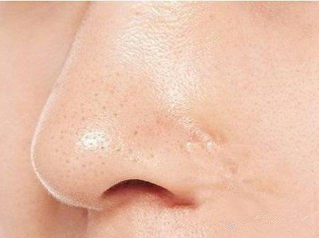 鼻子上挤出来的白色的东西是什么