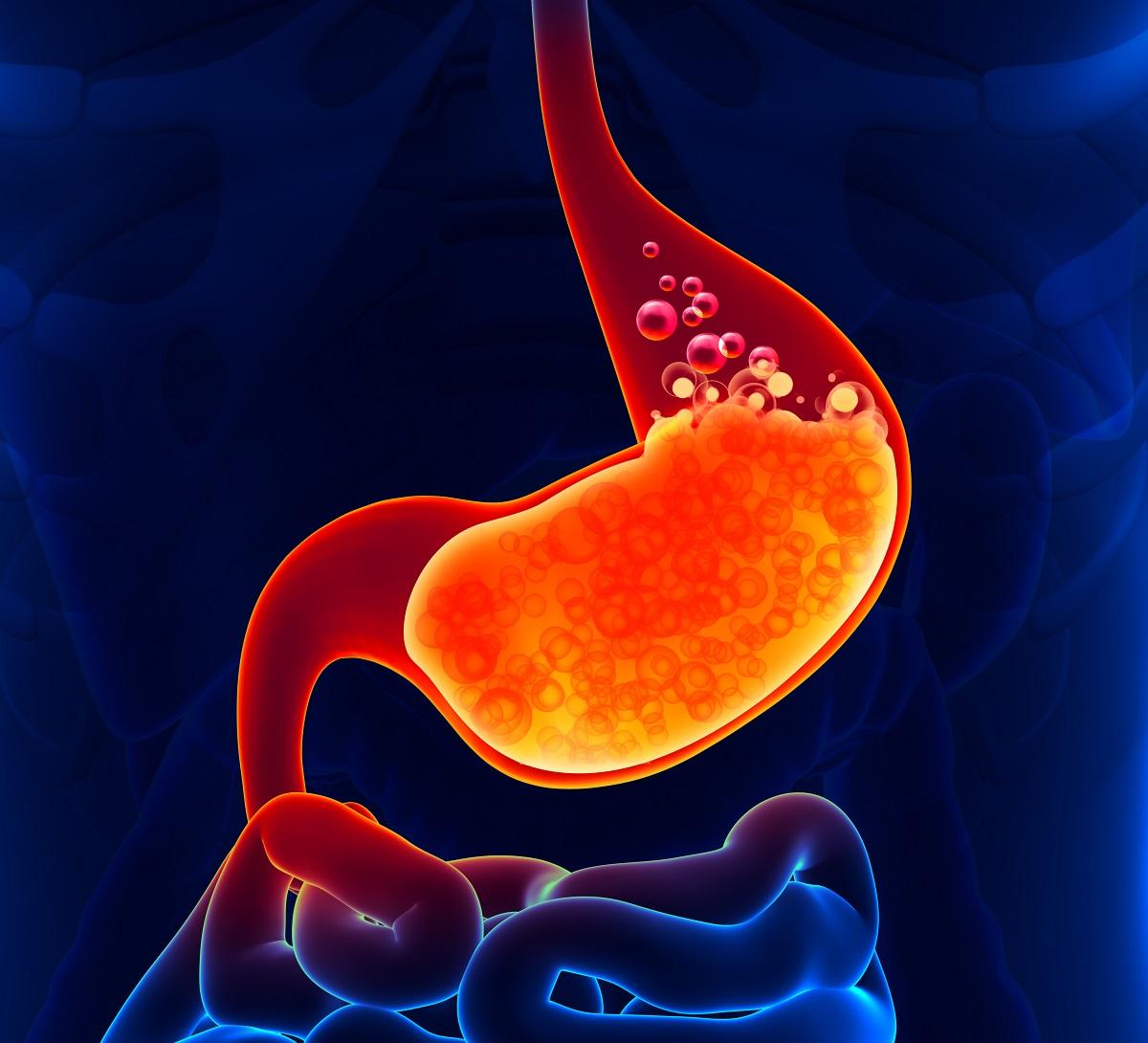 胃癌早期有6大信号,占一个也要小心为妙