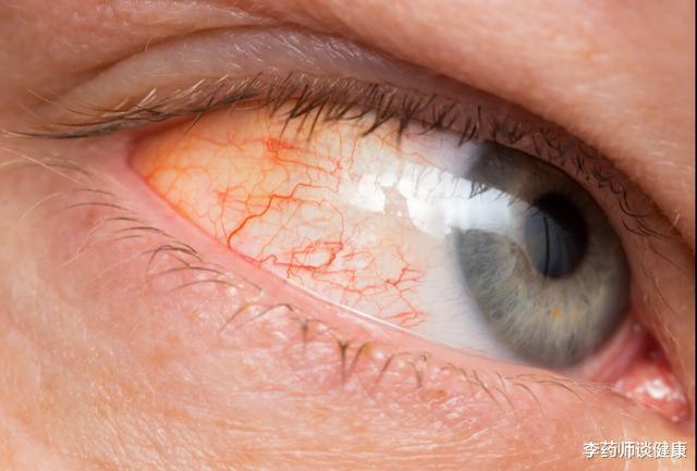 肝受损,脸上会出现这四个症状,占一个,也要及时去医院检查