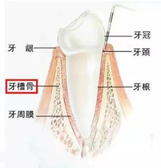 牙齿矫正的风险!