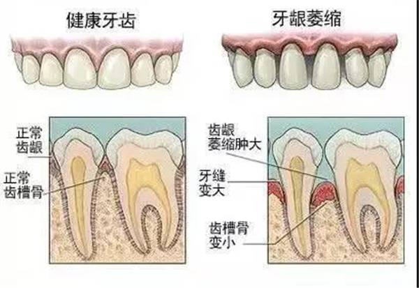 牙缝太大怎么办?矫正还是贴面呢?