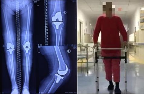如何预防膝关节骨关节炎?注意事项有4点
