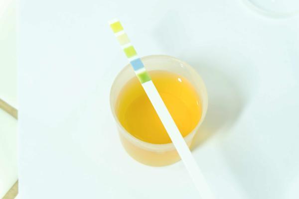 排出的尿液很黄、有异味,是身体出了什么问题?可自测