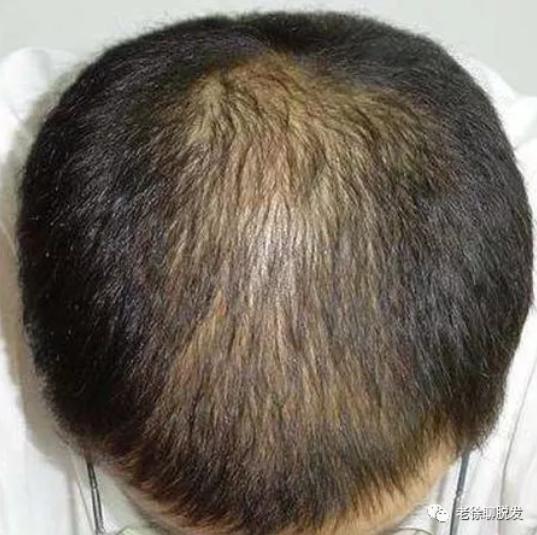 植发能一次性解决脱发?这篇文章告诉你真相!