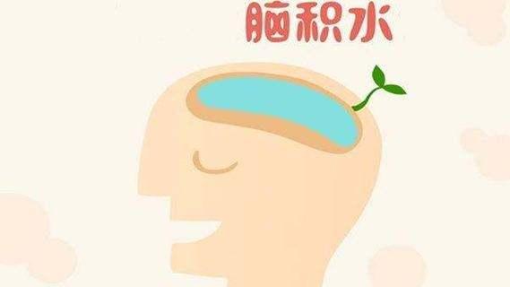 脑积水治疗前需要做哪些重要检查