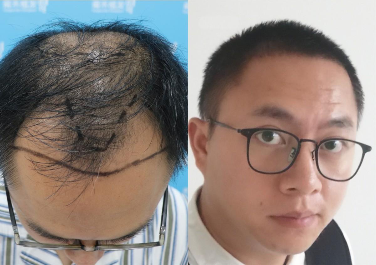 为什么很多秃顶的人不愿意剃光头