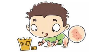 皮肤过敏怎么止痒?皮肤易过敏容易诱发湿疹,荨麻疹!