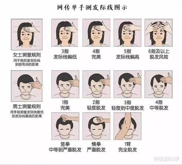 脱发是怎么回事?有什么方式可以预防?