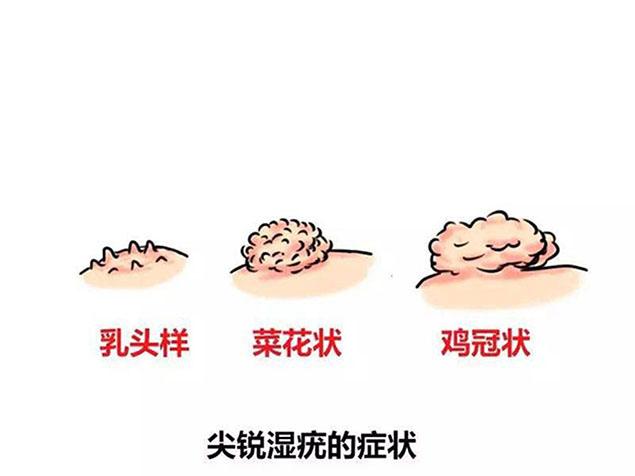 哪些途径会感染上尖锐湿疣?
