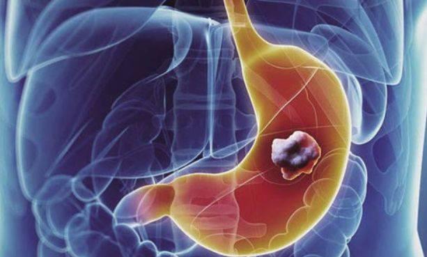 【健康科普】胃癌要不要手术治疗?