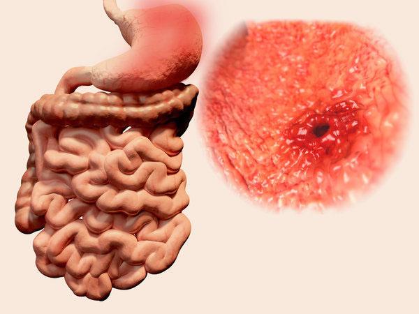 胃溃疡并发症你知多少,和注意的事项有哪些