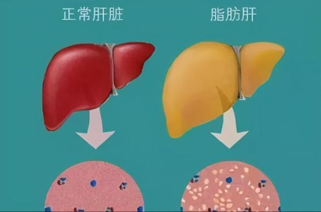肚子上的肥肉最容易堆积,该如何减掉它呢?这几个动作练起来