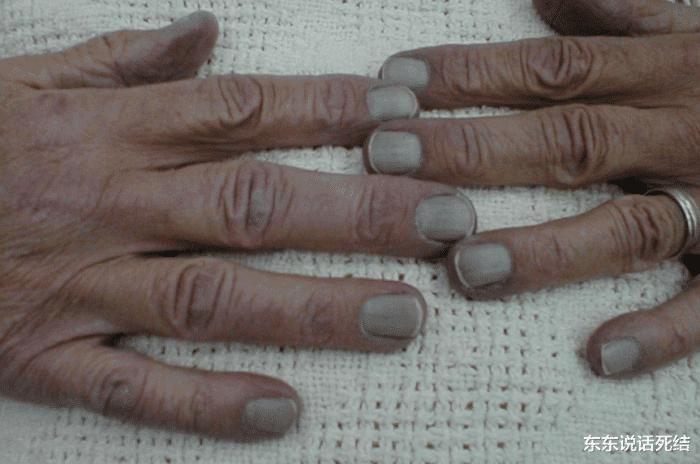 指甲是人身体的一部分,你们真的知道一些关于指甲的知识吗