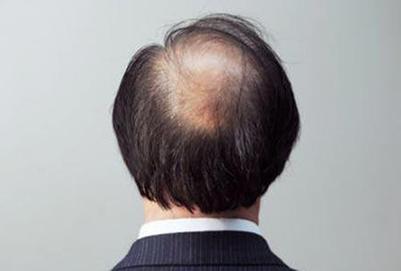 头发稀疏是什么原因导致的 加密有没有风险