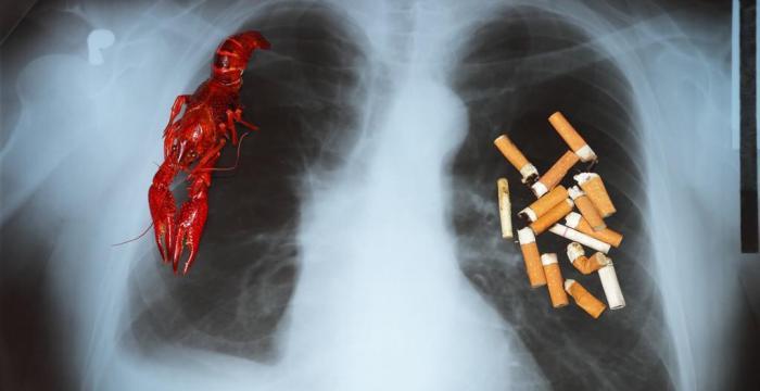 不吸烟更容易得肺癌,肺癌的危险因素有哪些