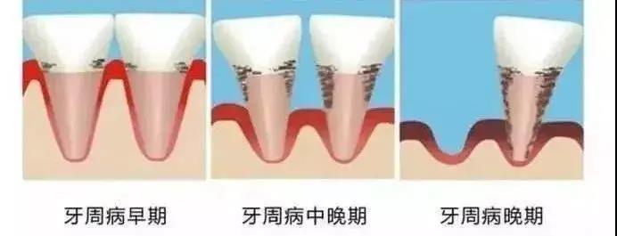 为什么牙龈会长脓包?如何治疗?
