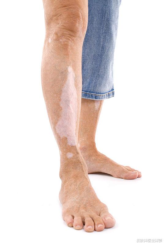 皮膚科醫生和你談談,白癜風患者日常生活中應該注意些什么?