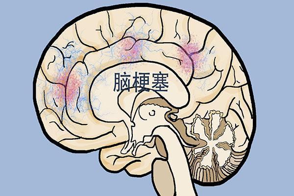 得了脑梗还能恢复正常吗?了解这3种情况,帮你预防保健