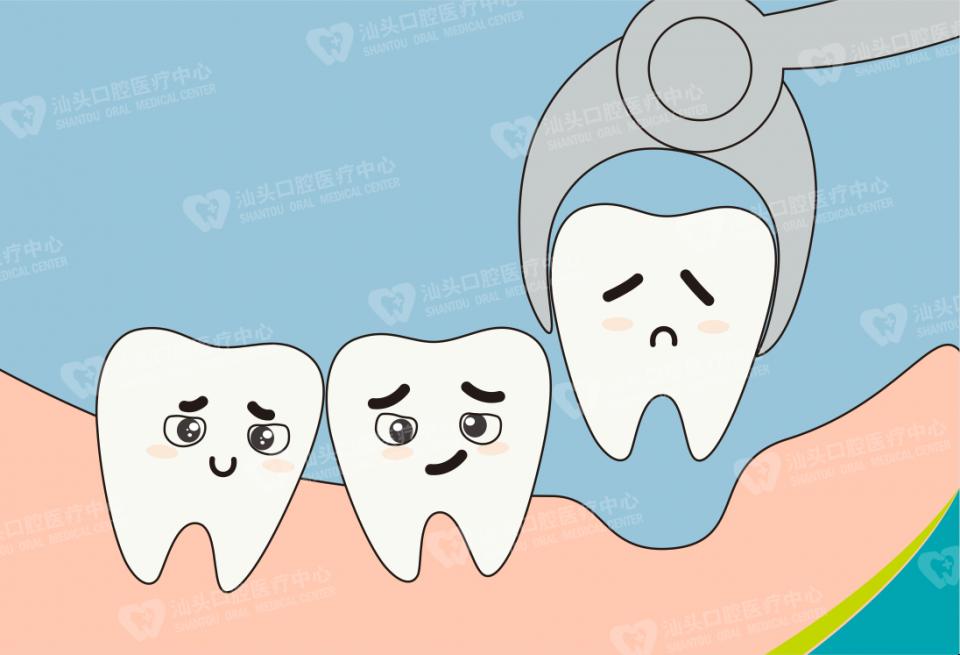 害怕拔牙?想拔也要条件的!拔牙前的注意事项了解过吗?
