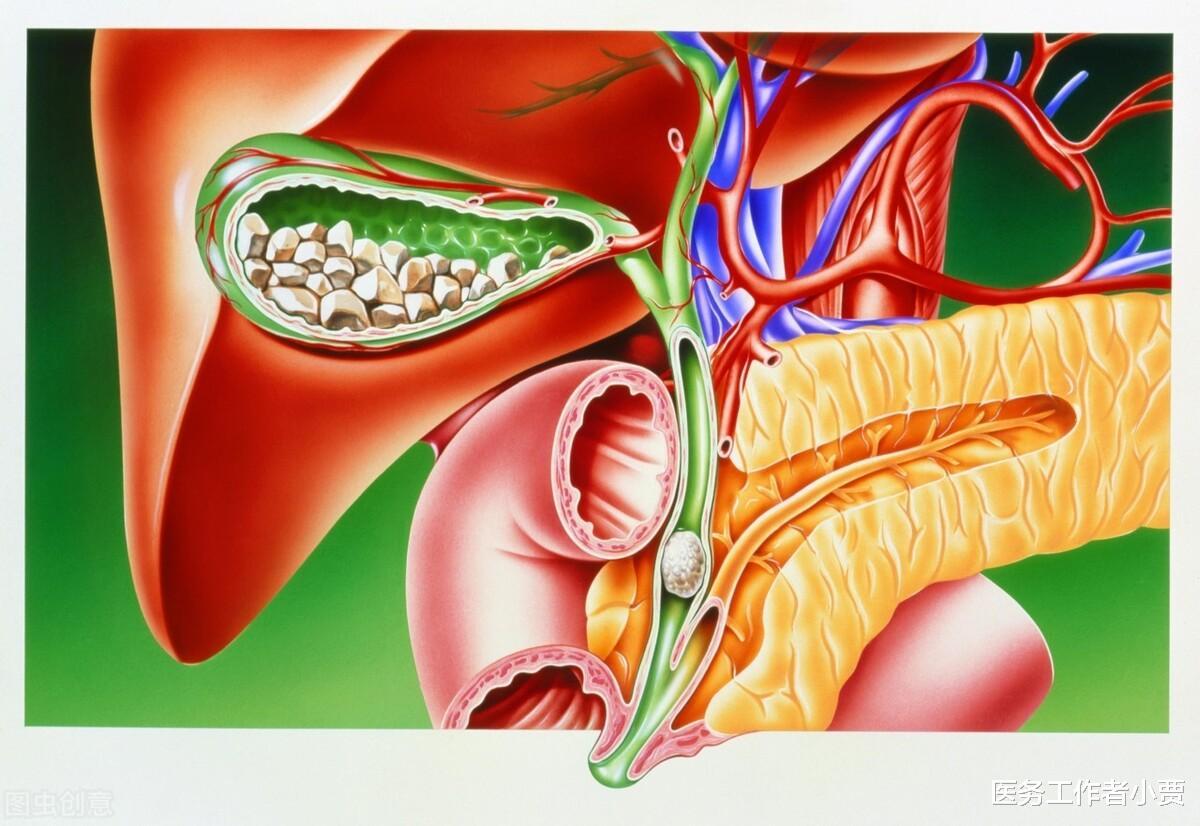 胆囊炎是怎么引起的,吃什么水果比较好?