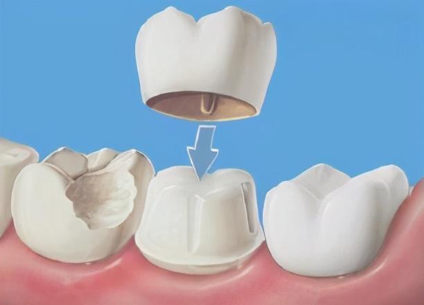 牙齿松动太可怕,别等到需要种牙再后悔