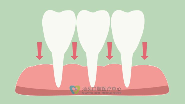 为什么牙缝会越来越大,是什么原因导致的?