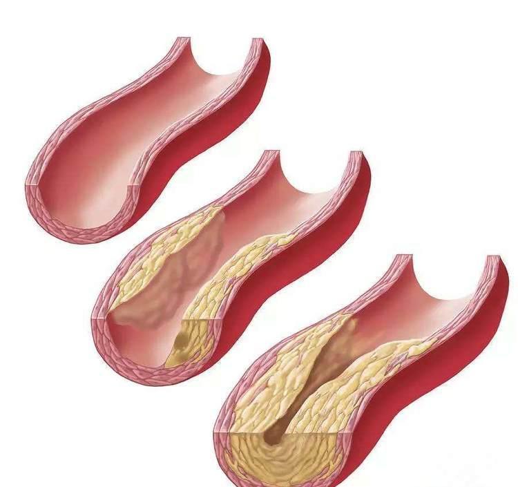 血液粘稠度高危害大吗?吃什么可以缓解呢?