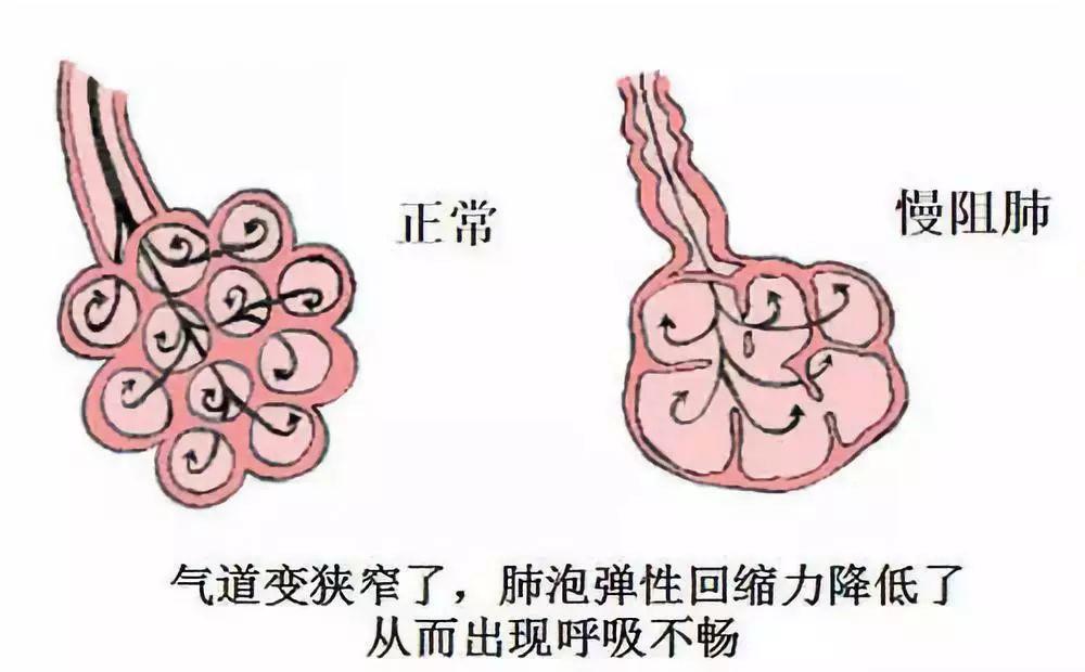 慢阻肺怎么样治疗好 慢阻肺是怎么形成的