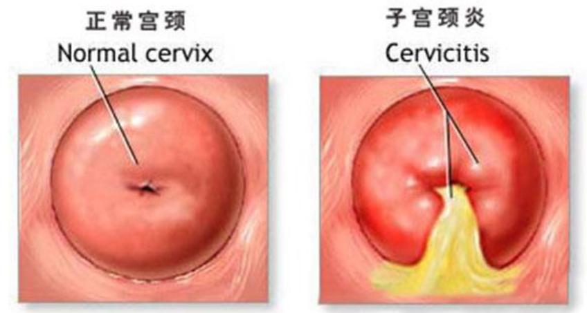 如何预防宫颈炎?