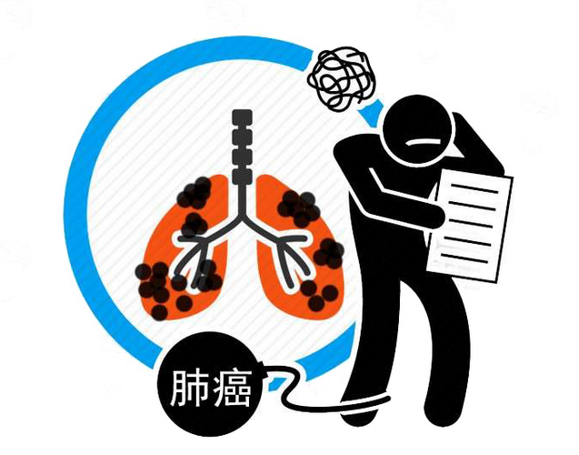 肺癌初期有哪些迹象?医生:出现这4种症状,越早查肺CT越好