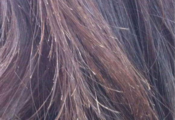 头发为什么会分叉,头发分叉有什么影响?