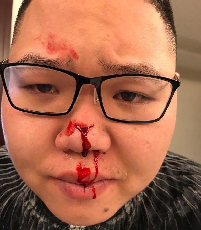 PDD爆料被车撞得满身是血,但没有追责车主,背后的原因令人感动