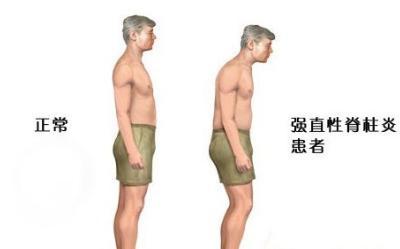 患上了强直性脊柱炎怎么办?注意先不要陷入这四大误区内。