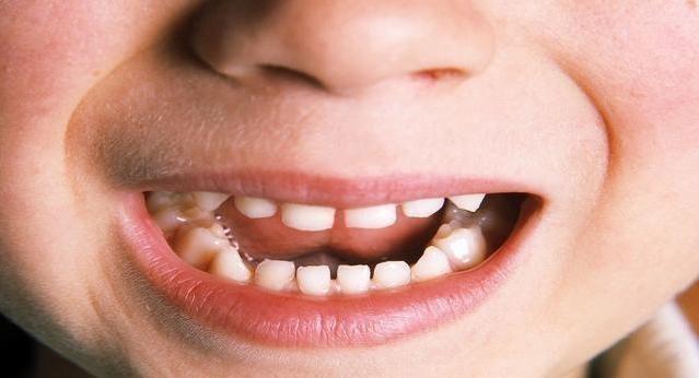 宝宝牙缝越长越宽是咋回事?孩子发育有规律,家长们先别着急