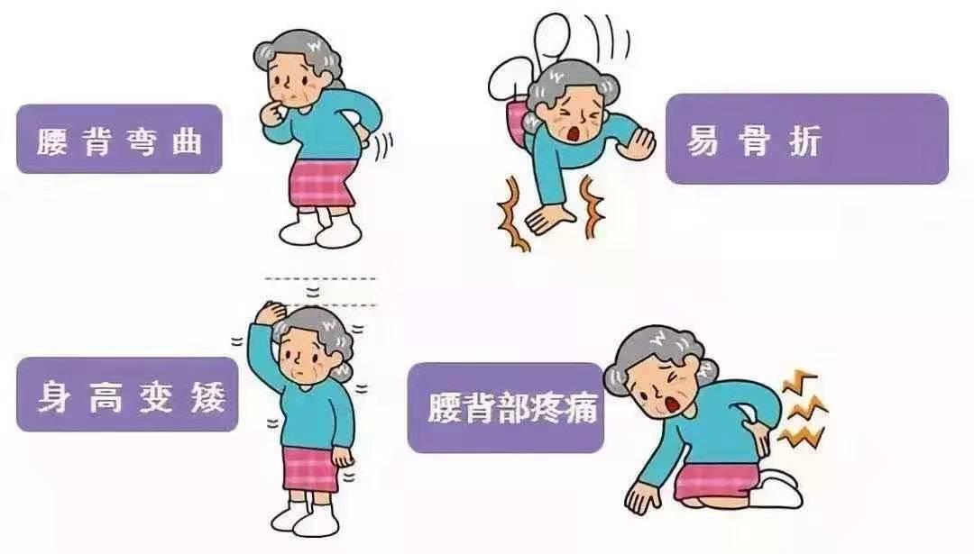 女性到了更年期,牢记3种食物,大胆多吃,远离腰背疼痛