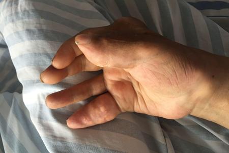 痛风一定会长痛风石么?哪些患者容易长呢?