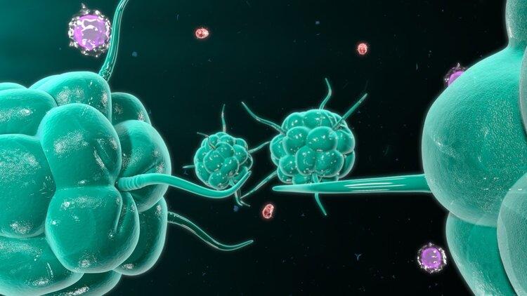 抗癌是花钱受罪,最终人财两失?老实说,4种癌症晚期也可治愈