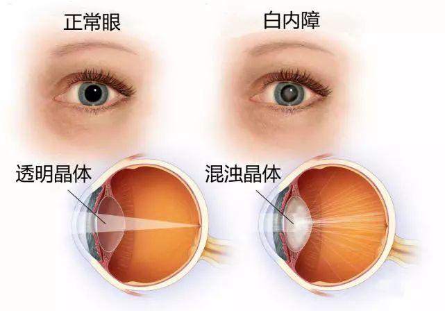 常见的眼部疾病有哪些?别急,看这里