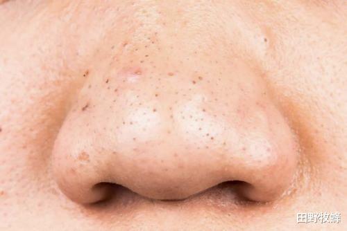怎么用蜂蜜去鼻子上的黑头? 去黑头收缩毛孔的最好方法?