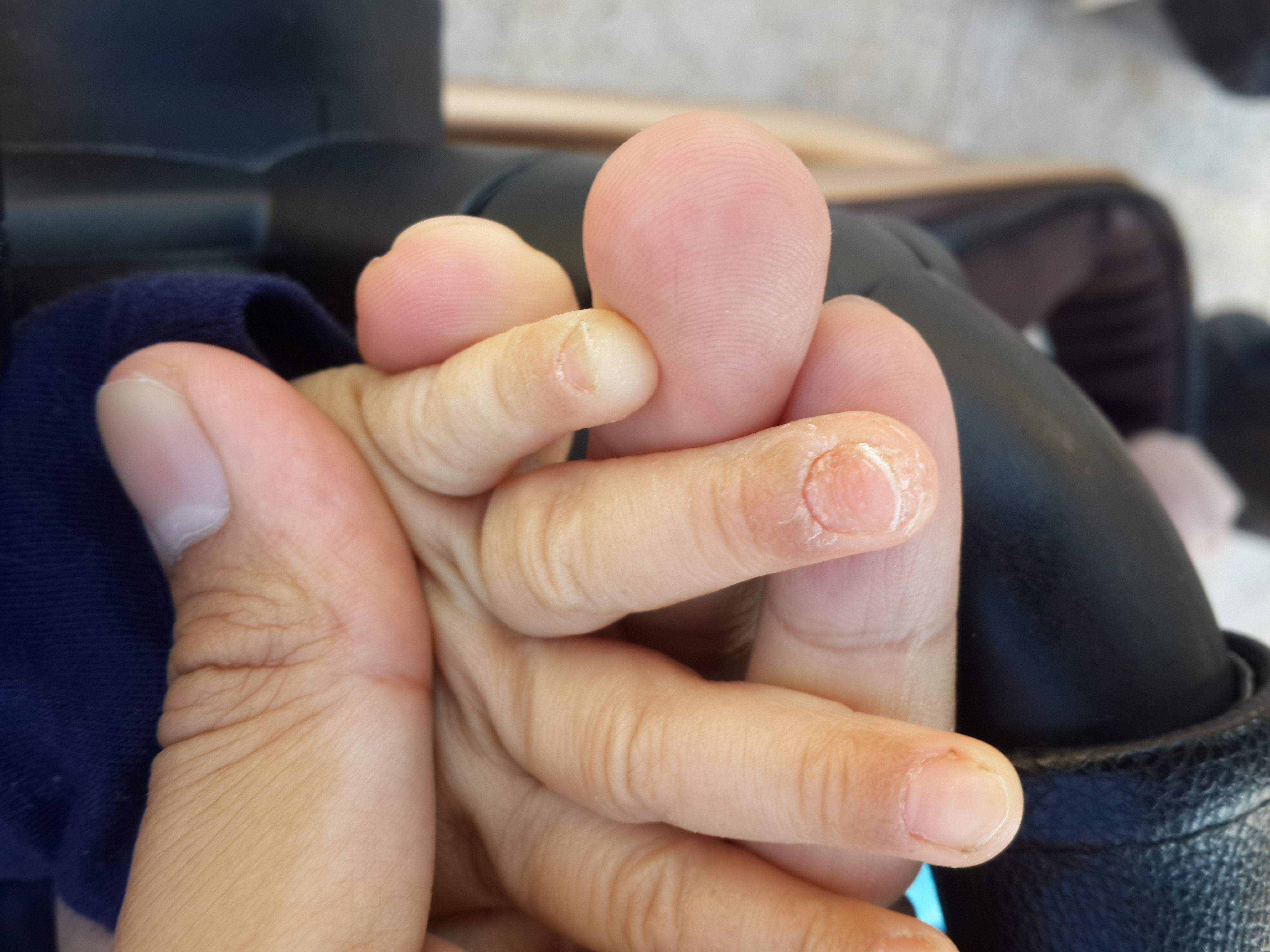 湿疹反反复复,治不好怎么办?医生建议,做好这3点就可有效预防