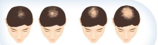 """""""M""""型脱发和""""O""""型脱发的区别!"""