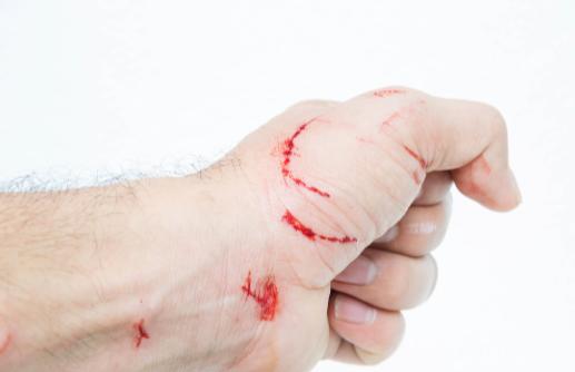 伤口总是愈合很慢?专家:可能是高血糖导致的,趁早重视起来