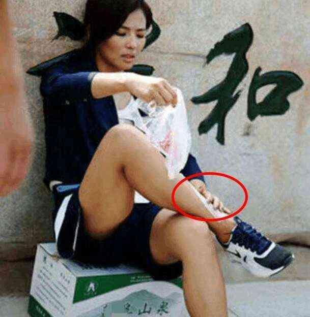 独家解读有关刘涛拍戏脚扭伤, 独自坐在路边 塑料袋敷脚踝 被网友大图片